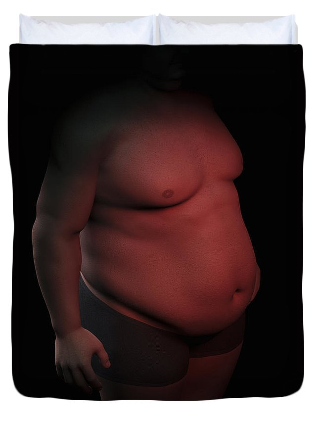 Abdominal Duvet Cover featuring the photograph Obesity by Science Picture Co