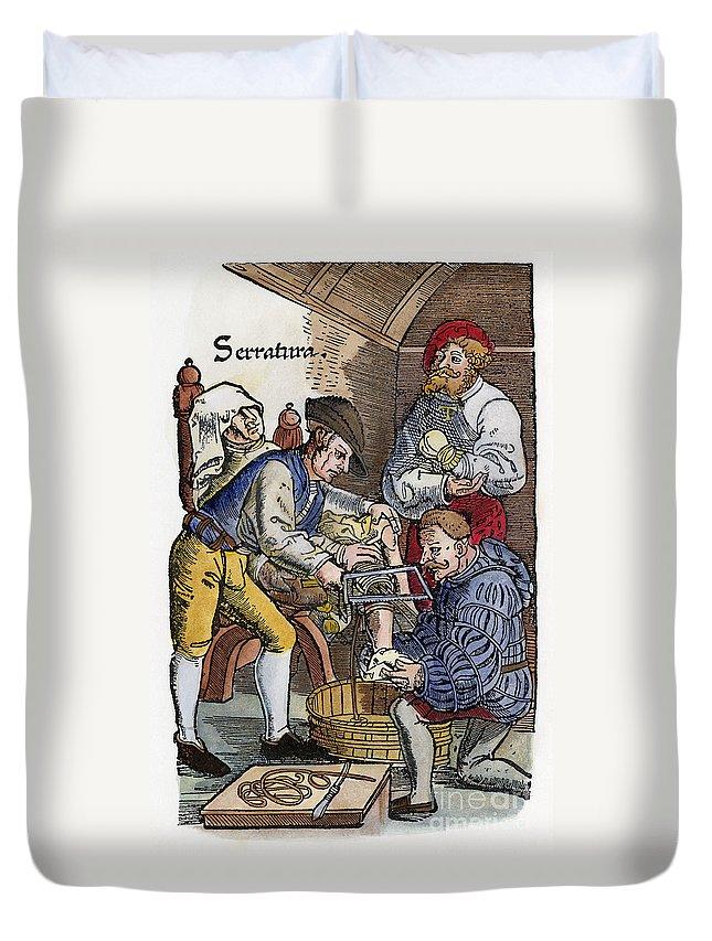 1540 Duvet Cover featuring the photograph Amputation, 1540 by Granger