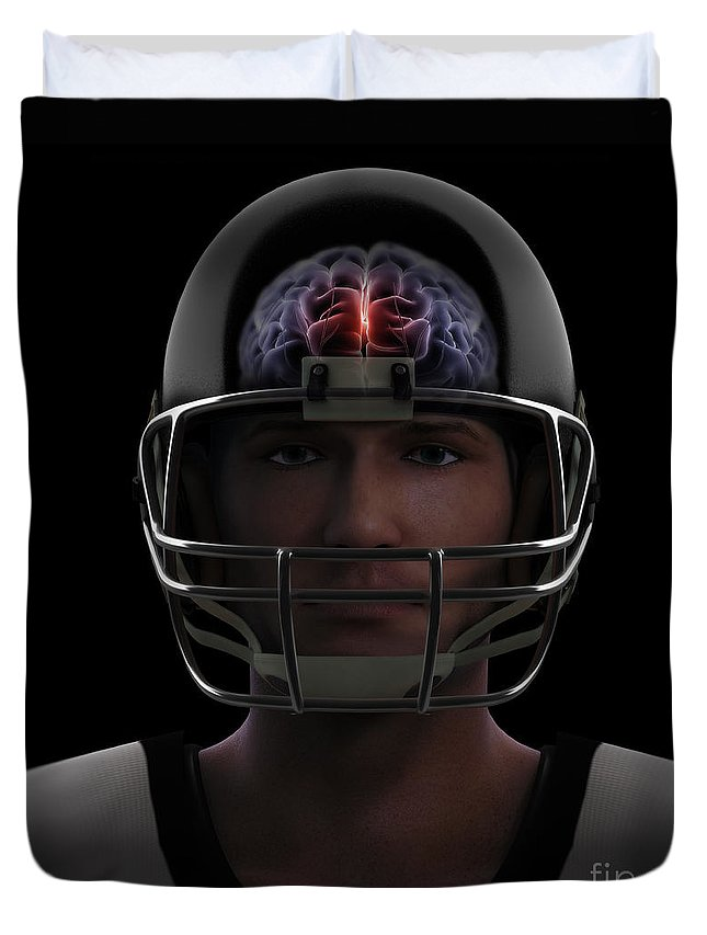 3d Model Duvet Cover featuring the photograph Brain Injury by Science Picture Co