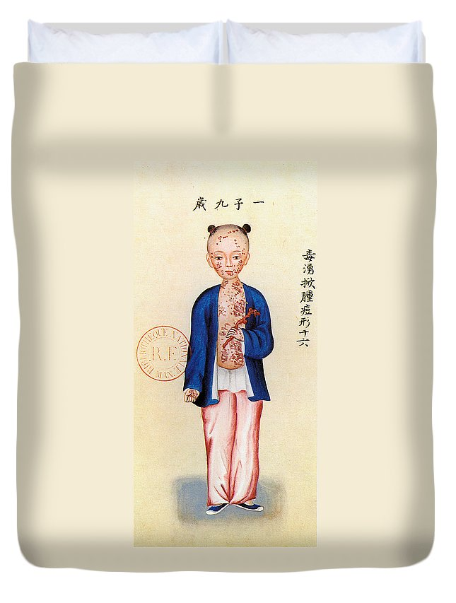 Alternative Duvet Cover featuring the painting China Smallpox by Granger
