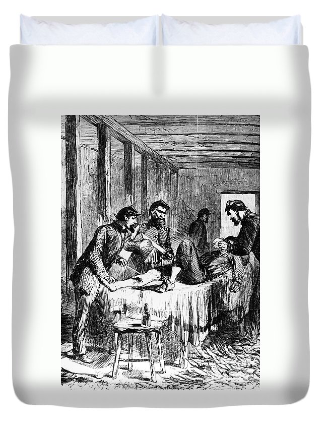 1860s Duvet Cover featuring the photograph Civil War: Amputation by Granger
