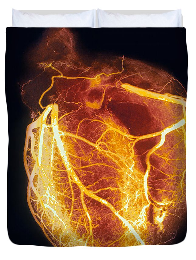 Angiogram Duvet Cover featuring the photograph Colored Arteriogram Of Arteries Of Healthy Heart by Spl