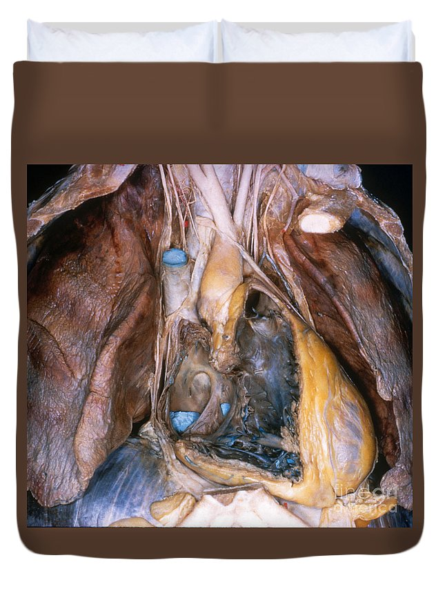 Anatomy Duvet Cover featuring the photograph Human Heart by VideoSurgery