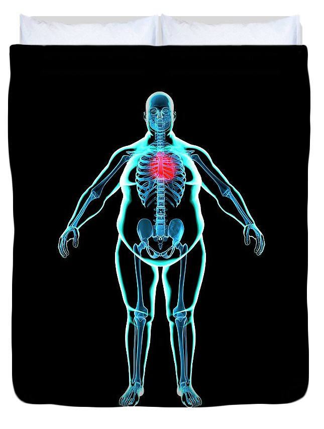 Risk Duvet Cover featuring the digital art Obese Mans Heart, Artwork by Science Photo Library - Roger Harris