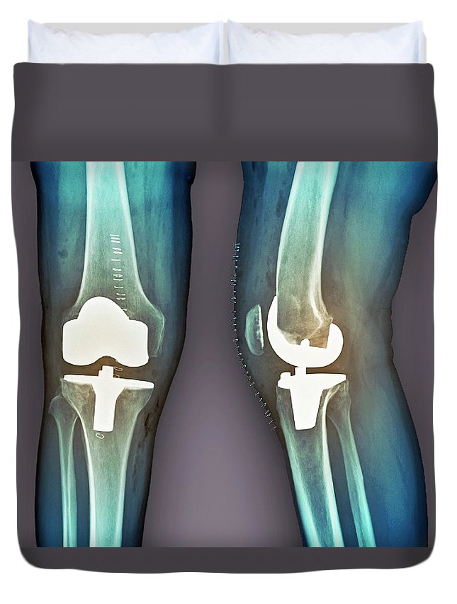 Artificial Duvet Cover featuring the photograph Total Knee Replacement, X-rays by Zephyr