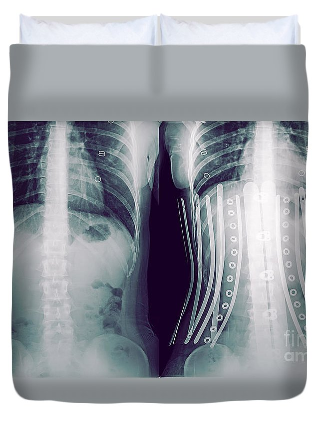 950a24a3d5 Compare Duvet Cover featuring the photograph Woman Wearing A Corset X-ray  by Guy Viner