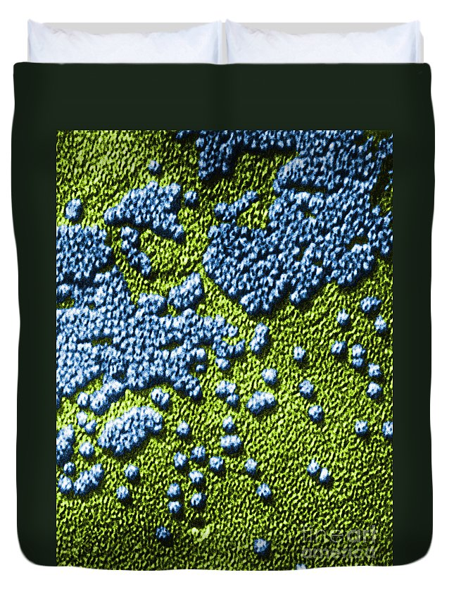 Disease Duvet Cover featuring the photograph Hepatitis Virus by Omikron