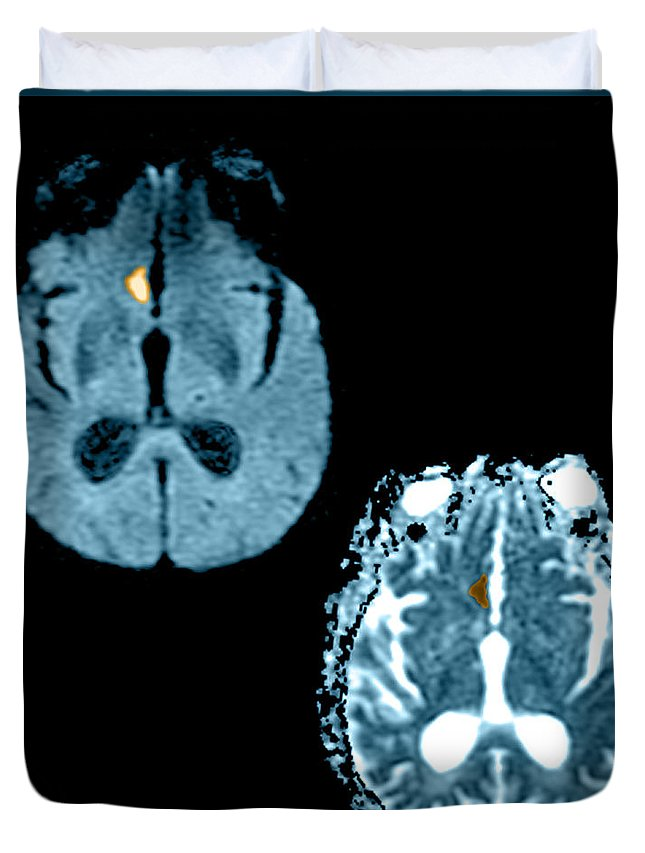 Mri Duvet Cover featuring the photograph Mri Of Stroke by Medical Body Scans