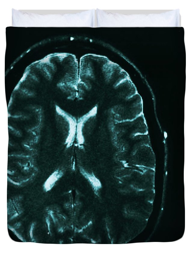 Brain Duvet Cover featuring the photograph Mri Of Normal Brain by Science Source