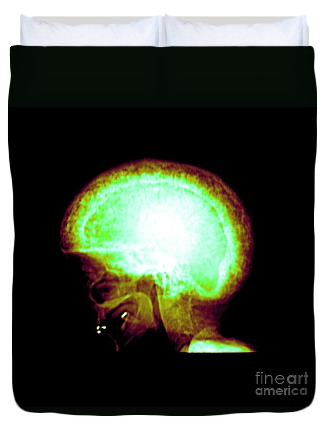 Bone Duvet Cover featuring the photograph Pagets Disease by Medical Body Scans