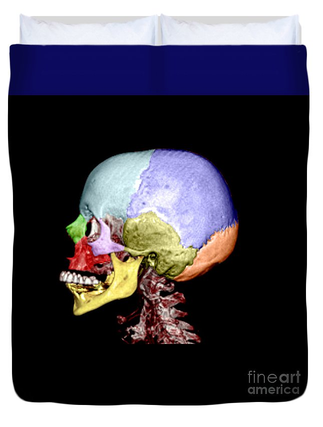 Head Duvet Cover featuring the photograph Human Skull by Medical Body Scans