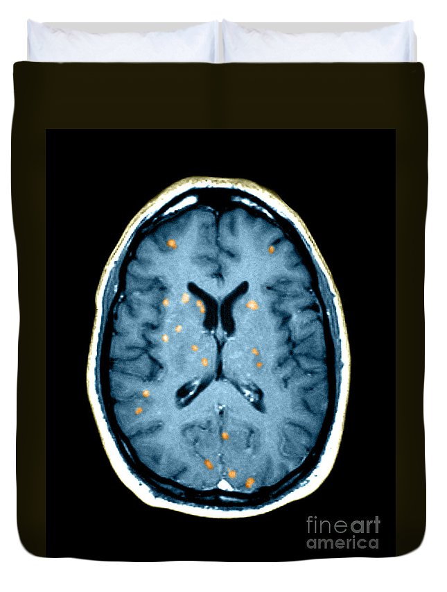 Medical Image Duvet Cover featuring the photograph Abnormal Mri Of Brain by Medical Body Scans