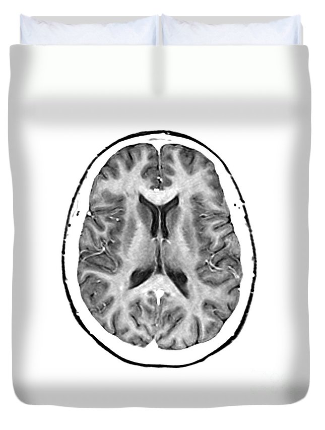 Magnetic Resonance Imaging Duvet Cover featuring the photograph Normal Cross Sectional Mri Of The Brain by Medical Body Scans