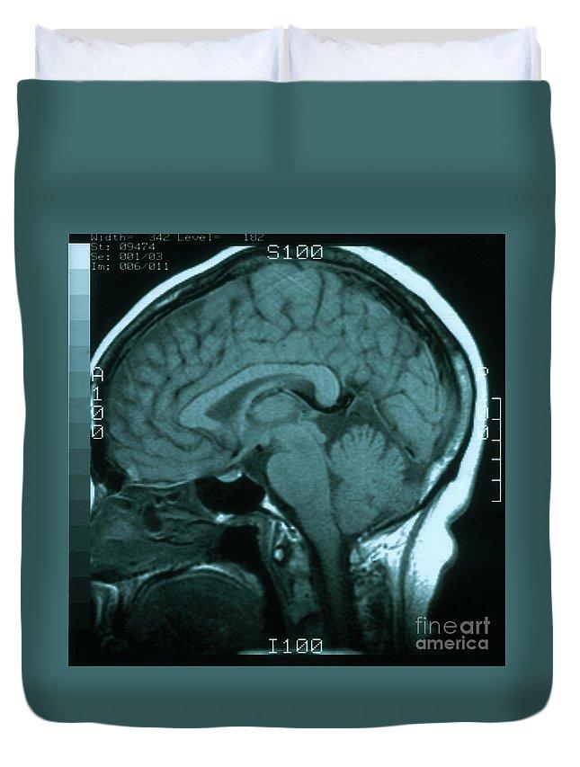 Magnetic Resonance Image Duvet Covers