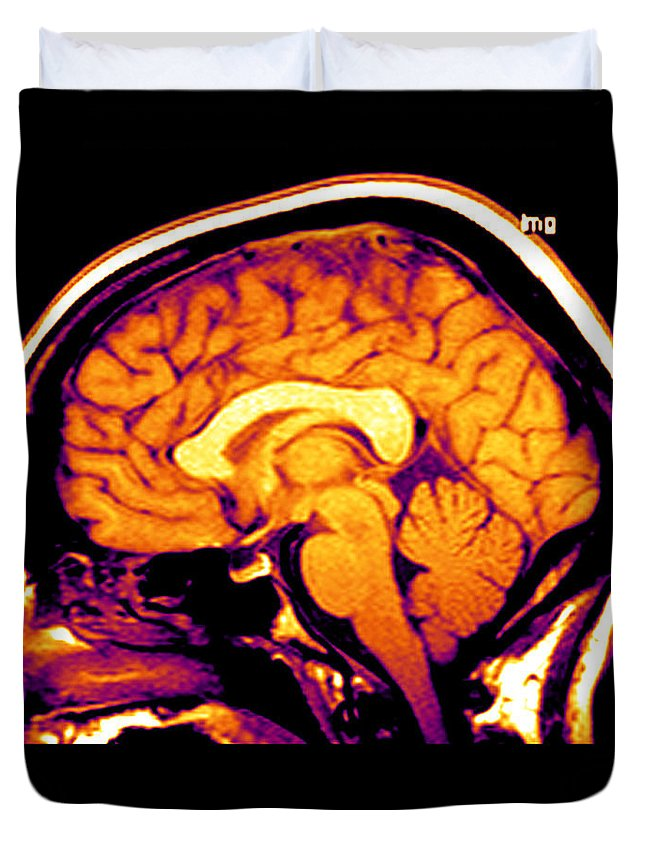 Brain Duvet Cover featuring the photograph Mri Of Brain by Medical Body Scans