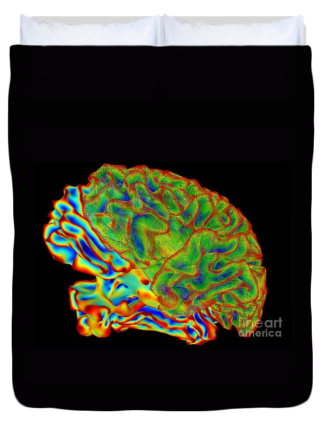 Science Duvet Cover featuring the photograph Human Brain, Surface Mapping by Science Source