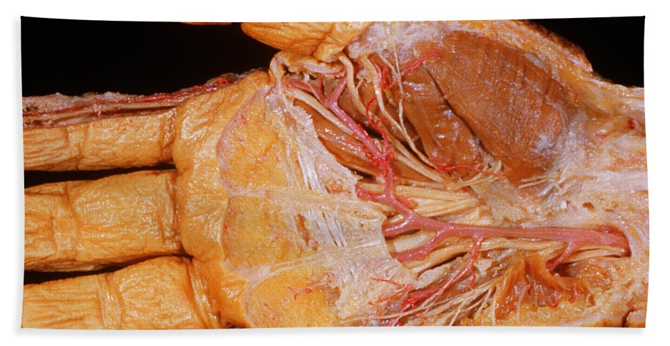 Right Hand, Palmar Dissection Hand Towel for Sale by VideoSurgery
