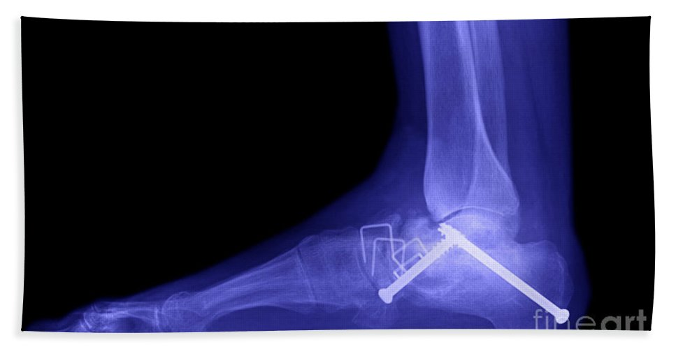 Ankle Hand Towel featuring the photograph Ankle Fracture by Ted Kinsman