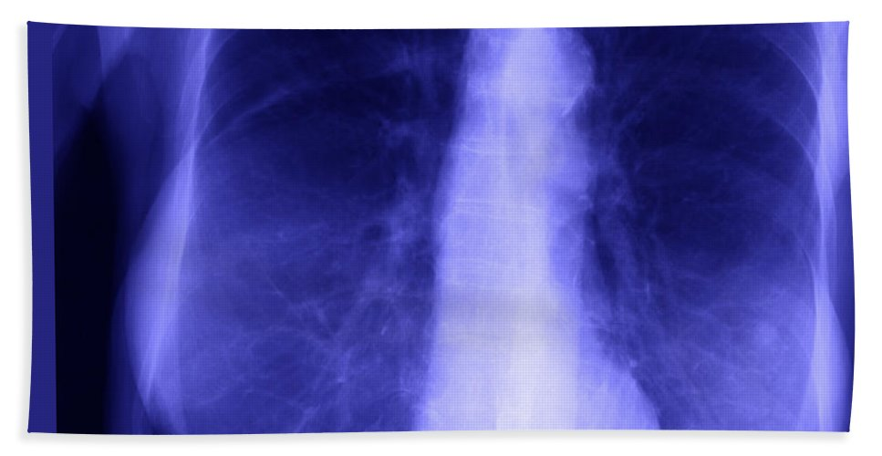Xray Hand Towel featuring the photograph Chest X-ray Of Female by Ted Kinsman