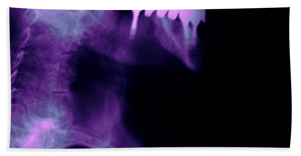 Xray Hand Towel featuring the photograph Dental Work by Ted Kinsman