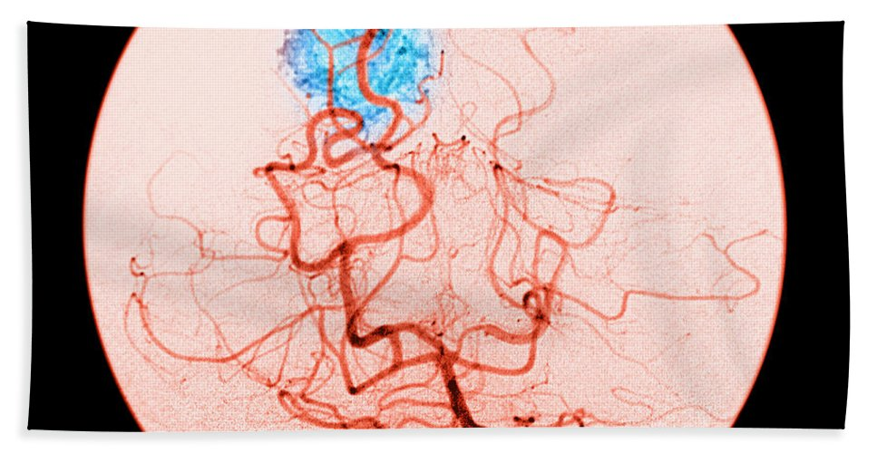 Abnormal Cerebral Angiogram Hand Towel featuring the photograph Occipital Lobe Avm by Medical Body Scans