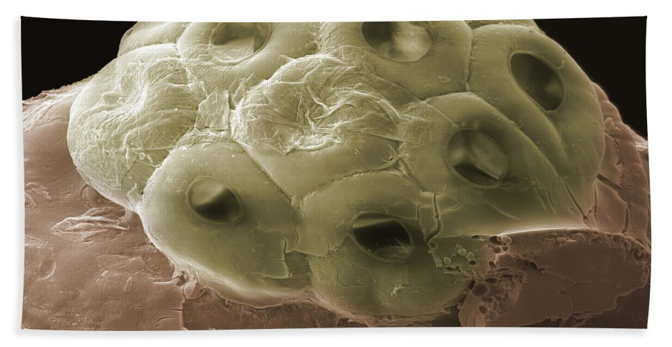 Scanning Electron Micrograph Hand Towel featuring the photograph Sem Of A Head Lice Eggs by Ted Kinsman