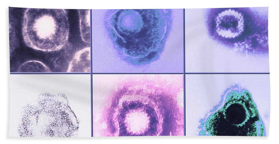 Herpes Hand Towel featuring the photograph Various Forms Of Herpes Simplex Virus by Science Source