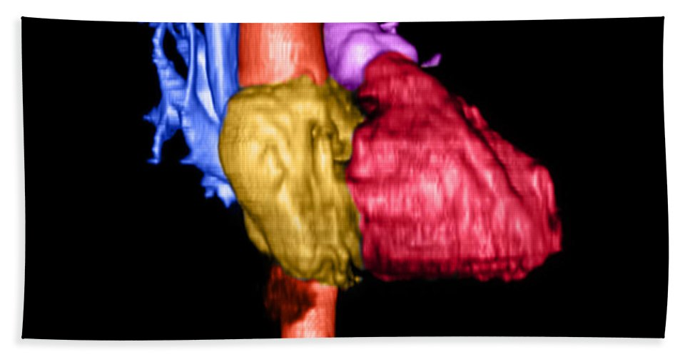 3 Dimensional Hand Towel featuring the photograph Color Enhanced 3d Cta Of Heart by Medical Body Scans