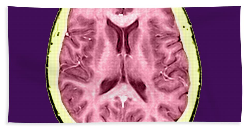 Anatomical Hand Towel featuring the photograph Normal Cross Sectional Mri Of The Brain by Medical Body Scans