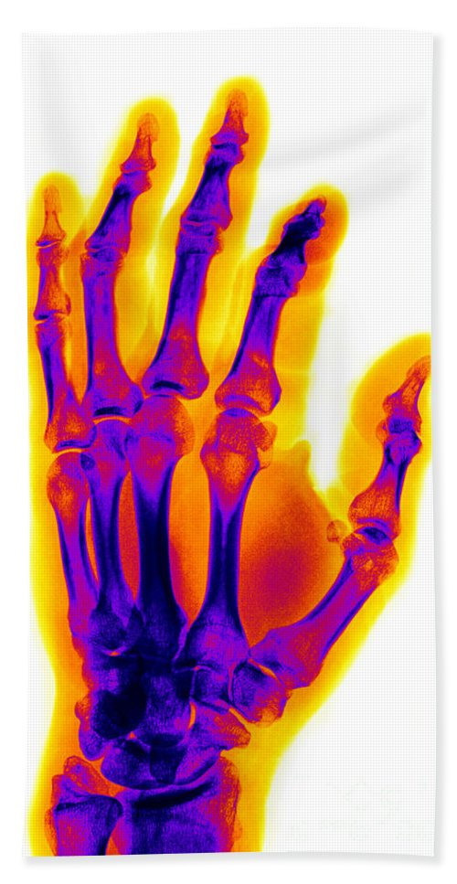 X-ray Hand Towel featuring the Finger Fracture by Ted Kinsman