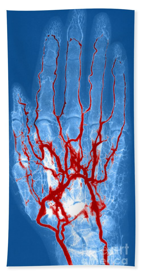 Angiogram Hand Towel featuring the photograph Hand Arteriogram by Science Source