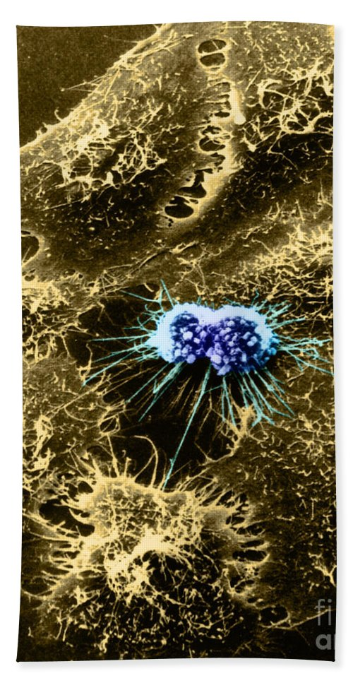 Sem Hand Towel featuring the photograph Hela Cells With Adenovirus by Science Source