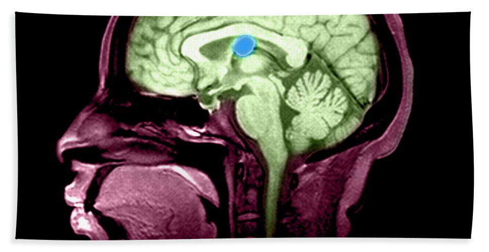Anatomical Hand Towel featuring the photograph Mri Colloid Cyst Of Third Ventricle by Medical Body Scans