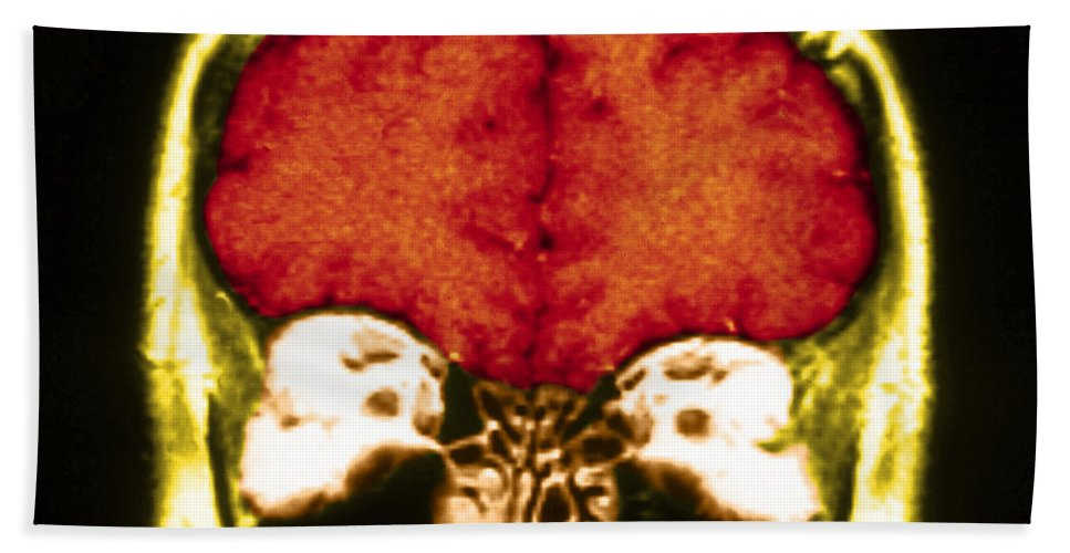 Brain Hand Towel featuring the photograph Mri Of Normal Brain by Science Source