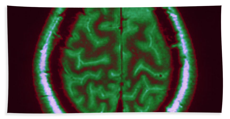 Brain Hand Towel featuring the Mri Of Normal Brain by Science Source