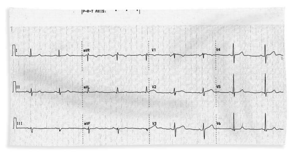Female Hand Towel featuring the photograph Normal Ecg by Science Source