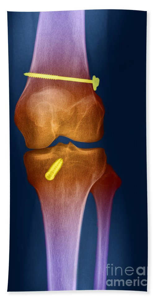 X-ray Hand Towel featuring the photograph Acl Knee Repair X-ray by Ted Kinsman