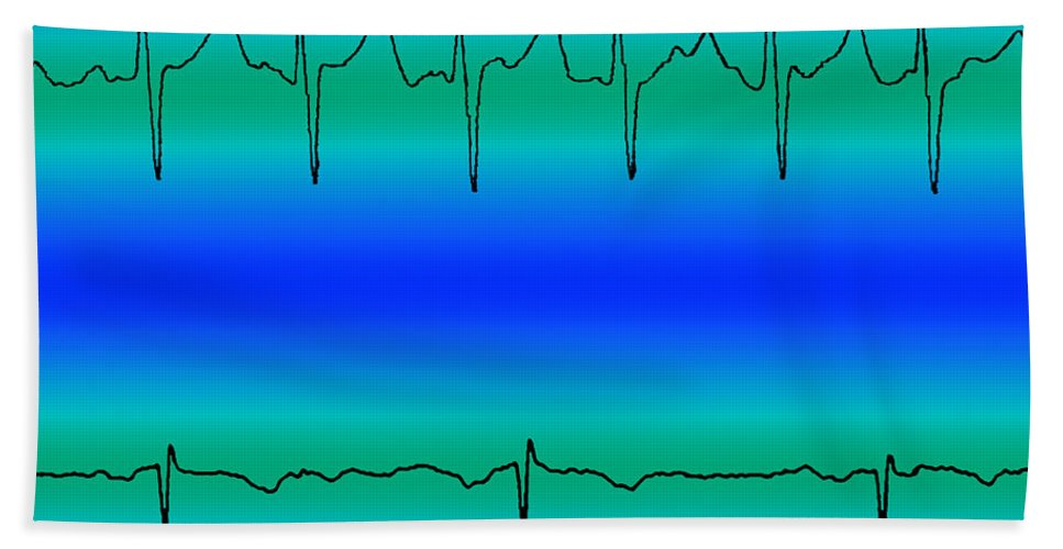 Atrial Fibrillation Hand Towel featuring the photograph Atrial Fibrillation & Normal Heart Beat by Science Source