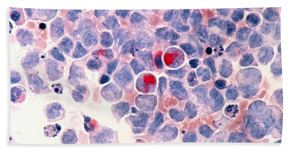 Myelocytic Leukemia Hand Towel featuring the photograph Myelocytic Leukemia by Science Source