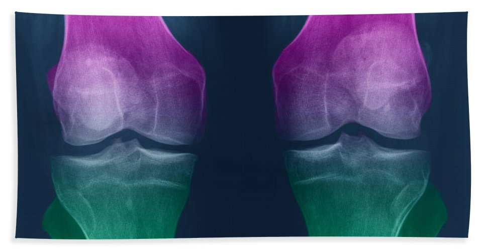 X-ray Hand Towel featuring the photograph Osteoarthritis Of The Knees by Ted Kinsman