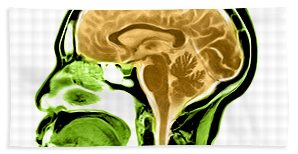 Anatomical Hand Towel featuring the photograph Sagittal View Of An Mri Of The Brain by Medical Body Scans