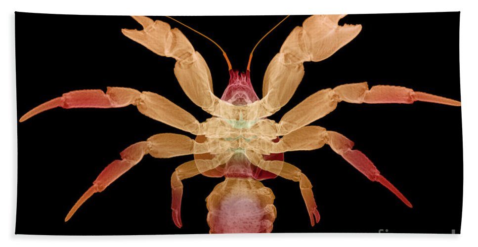 Animal Hand Towel featuring the photograph X-ray Of Coconut Crab by Ted Kinsman