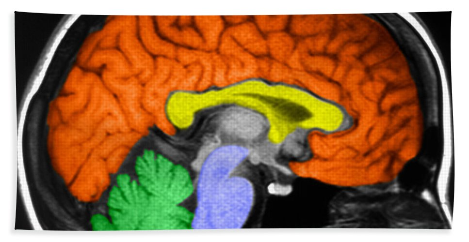 Medical Hand Towel featuring the photograph Human Brain by Ted Kinsman