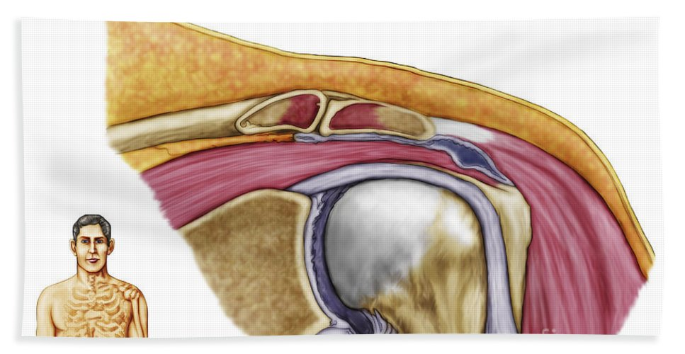 Biomedical Illustrations Bath Sheet featuring the digital art Anatomy Of Left Shoulder, Coronal View by Stocktrek Images
