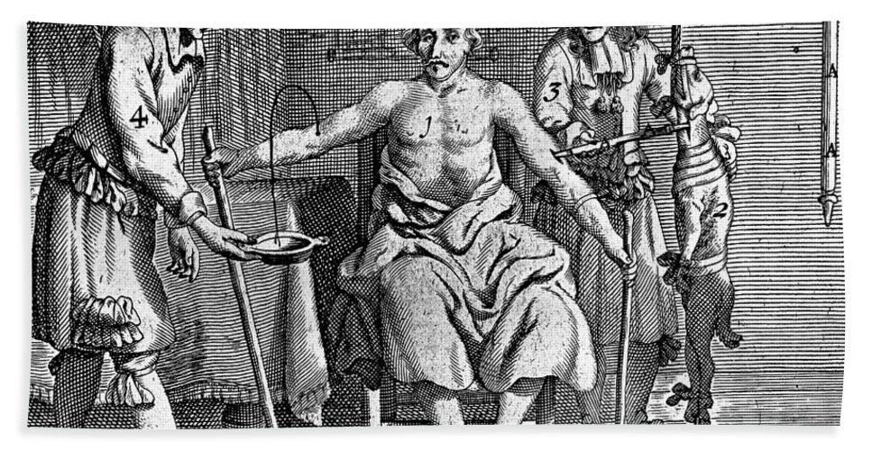 Historic Bath Sheet featuring the photograph Blood Transfusion From Dog To Man, 1692 by Wellcome Images