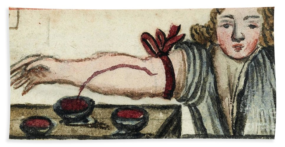 Historic Hand Towel featuring the photograph Bloodletting, Illustration, 1675 by Wellcome Images