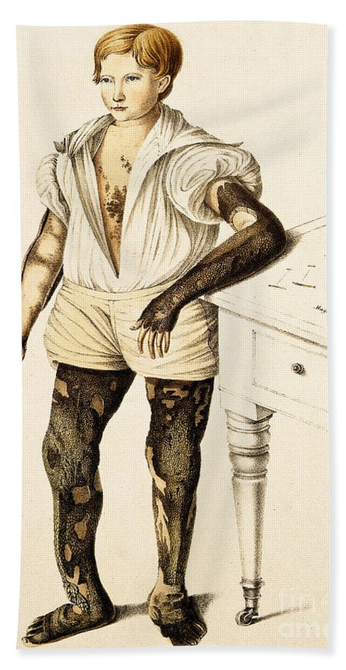Historic Bath Sheet featuring the photograph Boy With Ichthyosis, Skin Disease by Wellcome Images