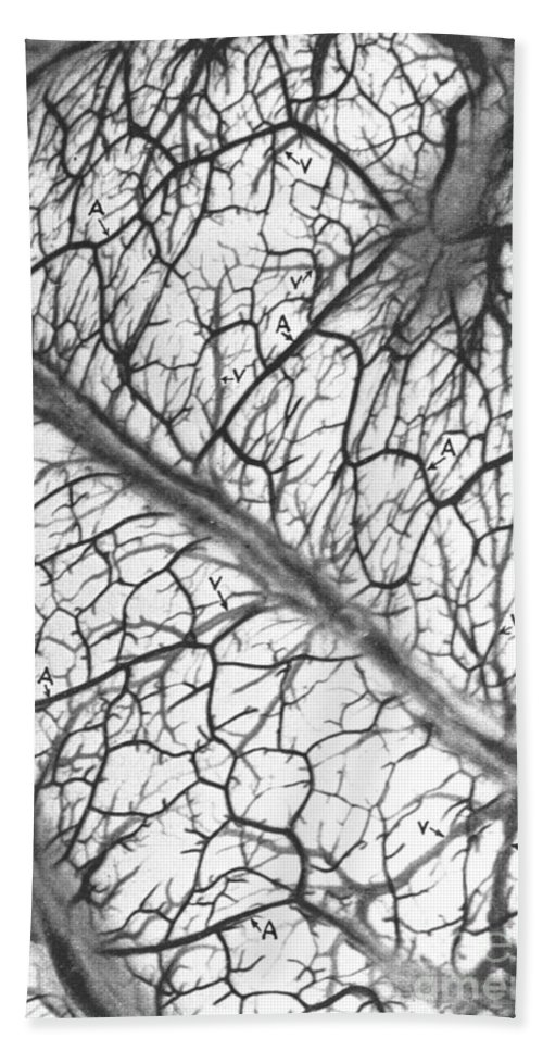 Historic Hand Towel featuring the photograph Brain Arteries And Veins by Wellcome Images