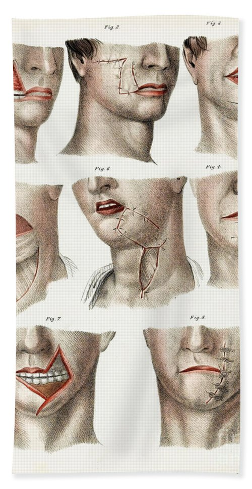 Historic Hand Towel featuring the photograph Facial Surgery, Illustration, 1846 by Wellcome Images