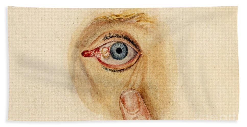Historic Bath Sheet featuring the photograph Globular Cyst On Eye, Illustration by Wellcome Images